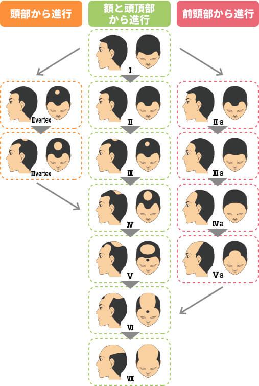 男性の薄毛の進行パターン